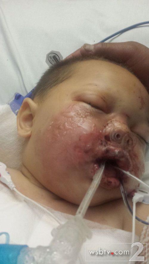baby burned by stun grenade